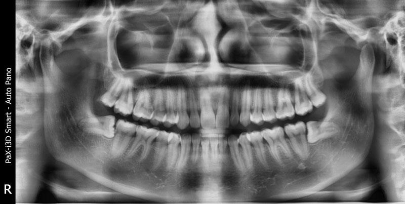Chụp X- quang răng để xác định hình răng, kích thước của răng khôn