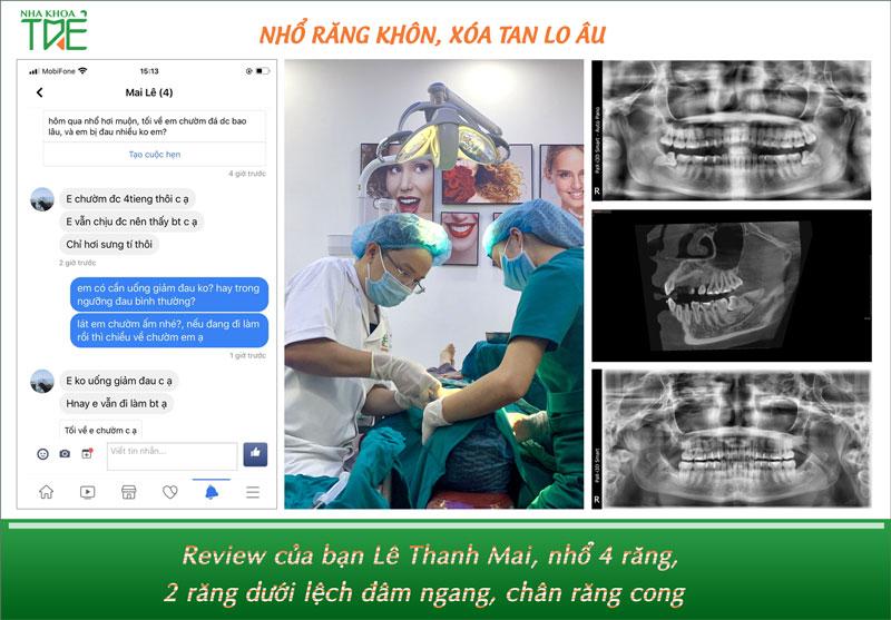 Nhổ răng khôn không cần uống giảm đau tại Nha khoa Trẻ