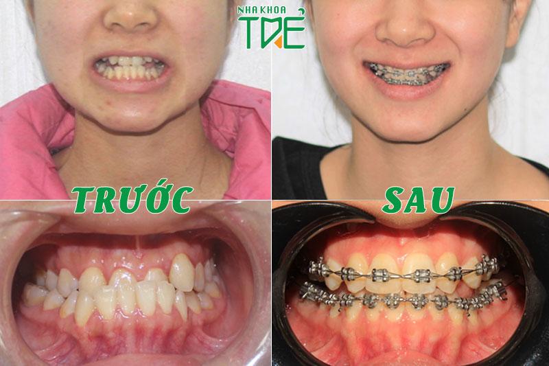 Niềng răng là giải pháp tối ưu giúp răng móm có nụ cười rạng rỡ nhất