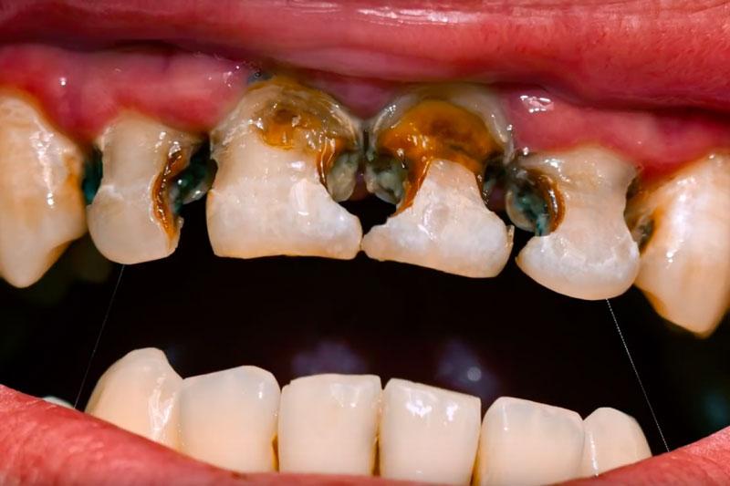 Phương pháp điều trị răng sữa phụ thuộc giai đoạn răng sâu
