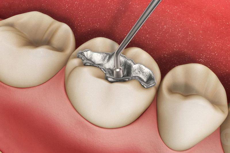 Trám răng lấp kín lỗ sâu trên răng