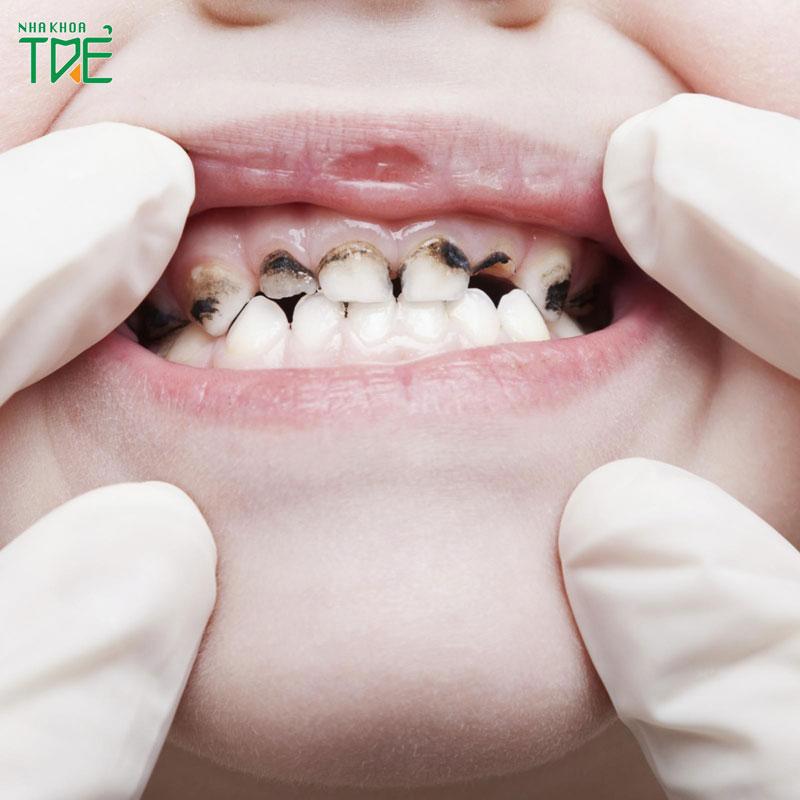 Tại sao răng sữa của bé bị mủn? Tình trạng này khắc phục như thế nào?