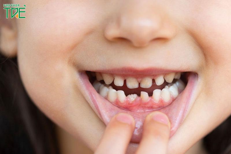 Răng sữa mọc lệch gây ảnh hưởng gì đến trẻ?