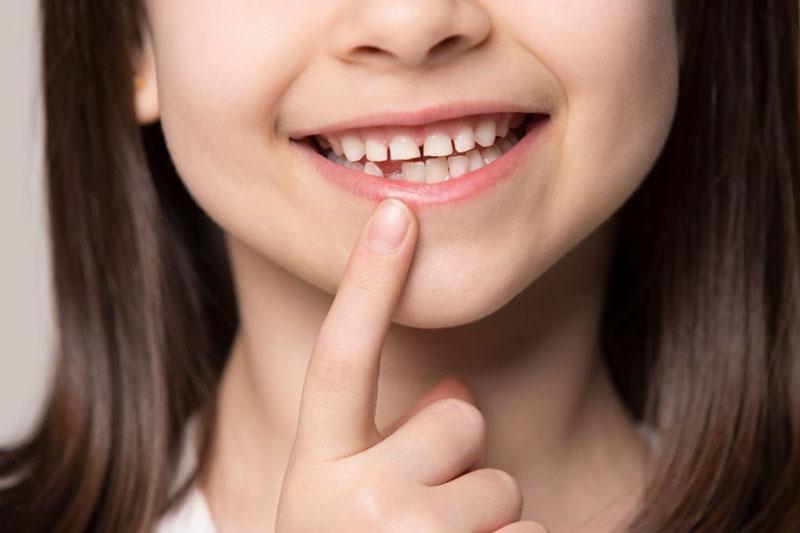 Răng sữa định hướng cho các răng vĩnh viễn mọc lên sau này