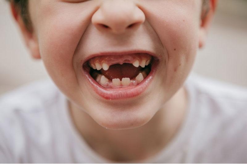 Trẻ thay răng vĩnh viễn vào giai đoạn 6 - 12 tuổi