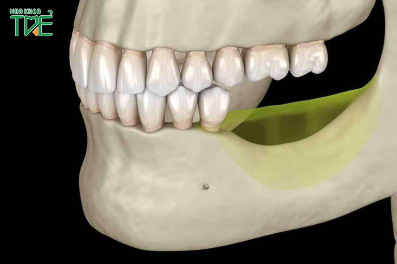 Tiêu xương hàm là gì? Tiêu xương hàm có nguy hiểm không?