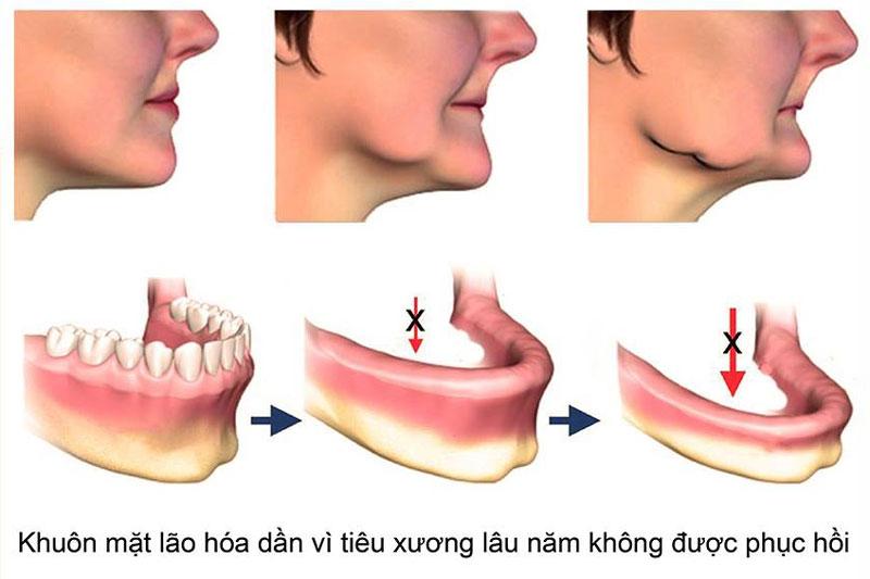 Tiêu xương hàm khiến kích thước xương giảm đáng kể
