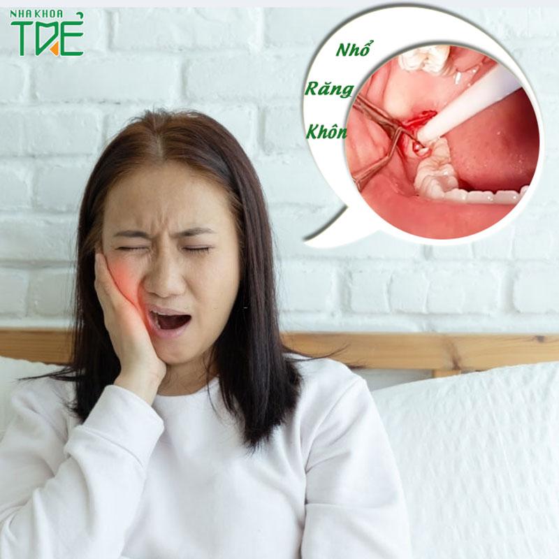 Tình trạng ê buốt sau nhổ răng khôn khắc phục như thế nào?