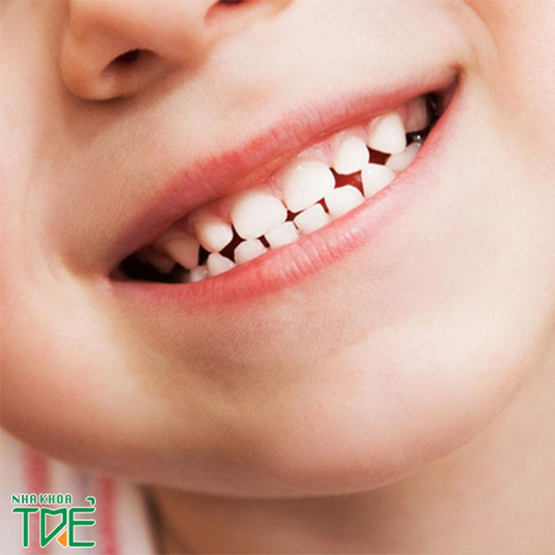 Trẻ em có bao nhiêu răng sữa? Quá trình mọc răng sữa ở trẻ như thế nào?