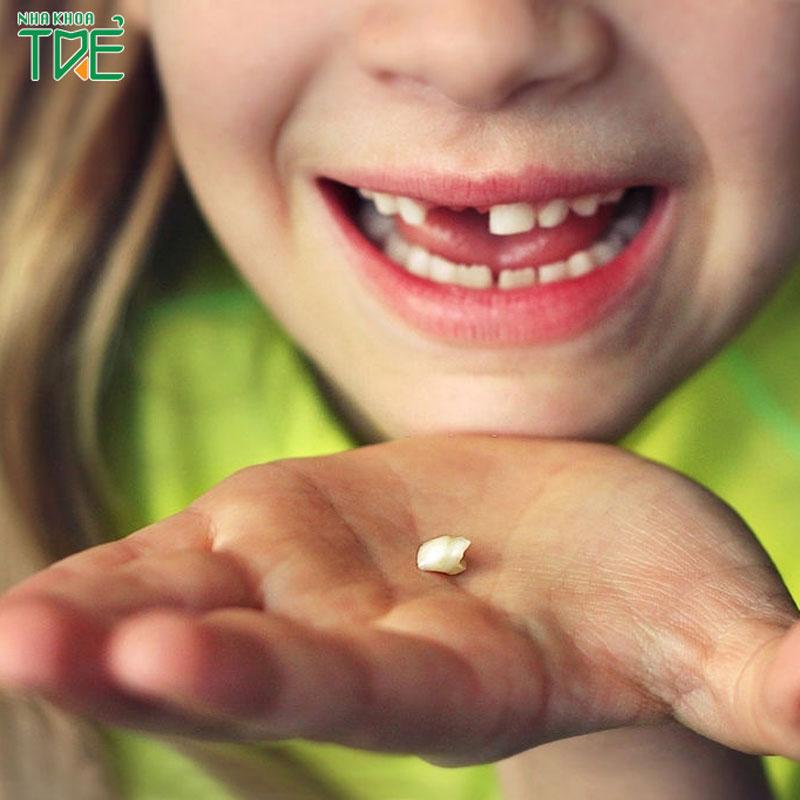 Trẻ em thay răng khi nào? Răng sữa có thể thay răng mấy lần?