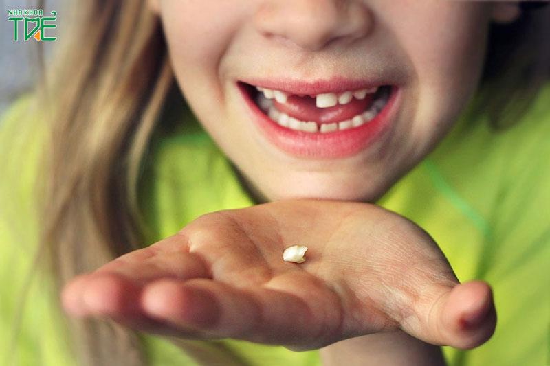 Trẻ em thay răng mấy lần?
