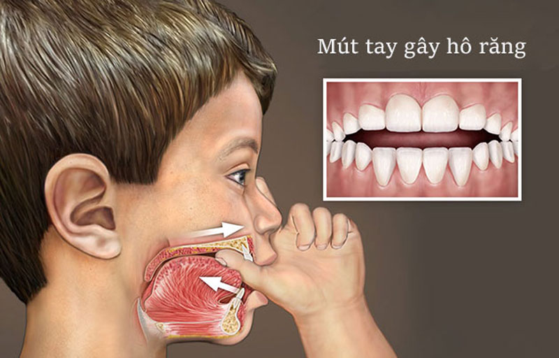 Trẻ mút tay lâu ngày sẽ dẫn đến tình trạng răng hô, lệch lạc