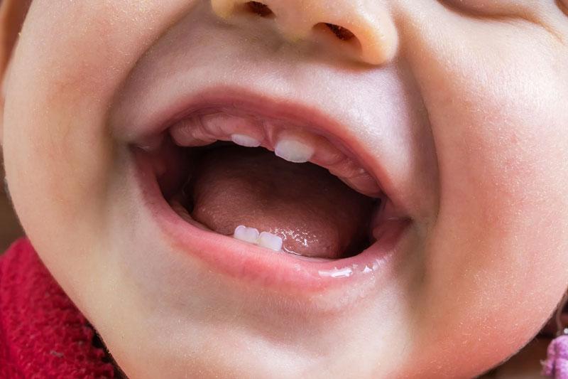 Nướu sưng đỏ là triệu chứng thường gặp khi bé mọc răng
