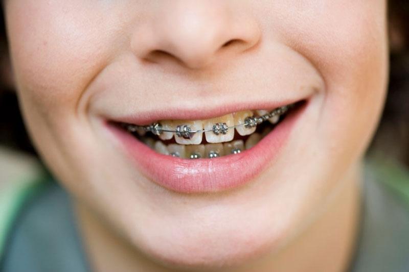 Niềng răng mắc cài gắn cố định, tạo lực kéo dịch chuyển răng