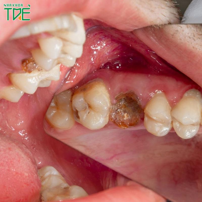 Trồng răng hàm bị sâu – Phương pháp nào hiệu quả và giá bao nhiêu tiền?