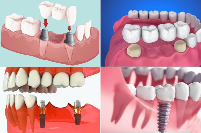 Trồng răng hàm bị sâu bằng cầu răng sứ hoặc Implant
