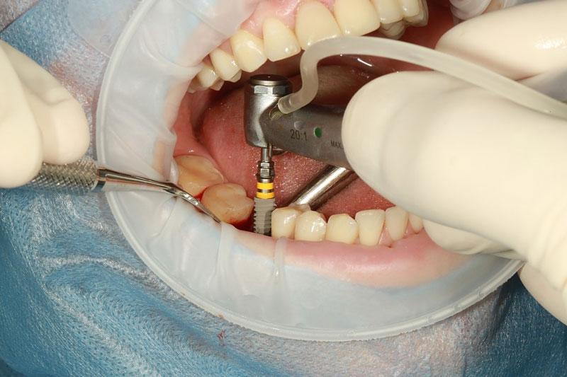 Trồng răng Implant khôi phục từ chân răng
