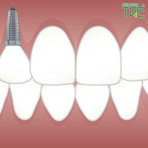 Trồng răng Implant có bền không? Tuổi thọ tối đa của răng Implant là bao lâu?Trồng răng Implant có bền không? Tuổi thọ tối đa của răng Implant là bao lâu?