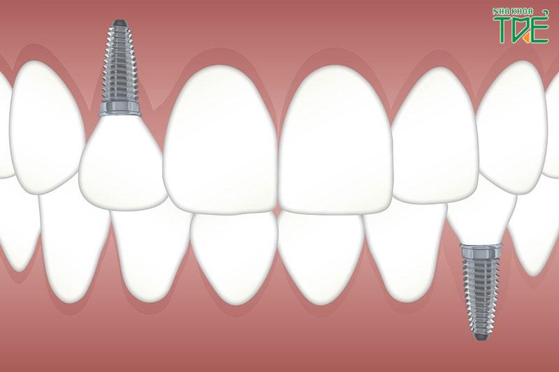 Trồng răng Implant có bền không? Tuổi thọ tối đa của răng Implant là bao lâu?