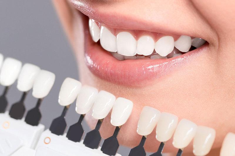 Bọc răng khểnh sử dụng được lâu dài