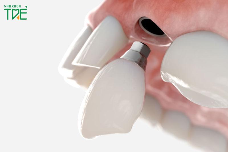 Trồng răng nanh loại nào tốt? Giá 1 chiếc răng bao nhiêu tiền?