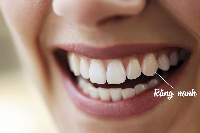 Răng nanh có chức năng ăn nhai quan trọng