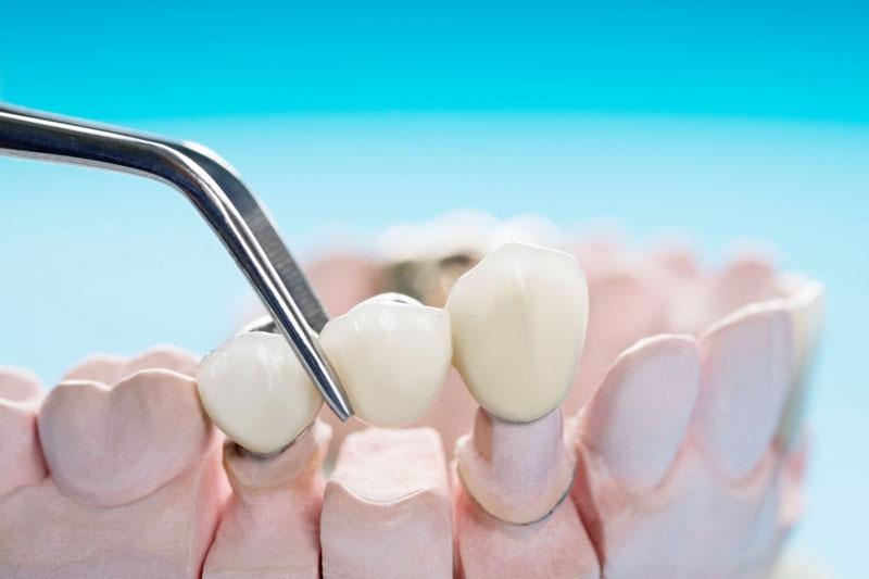 Cầu răng sứ là phương pháp trồng răng tức thì