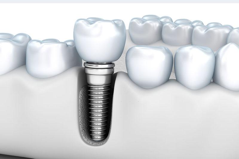 Trồng răng Implant phục hình được cả chân răng tương tự như răng thật