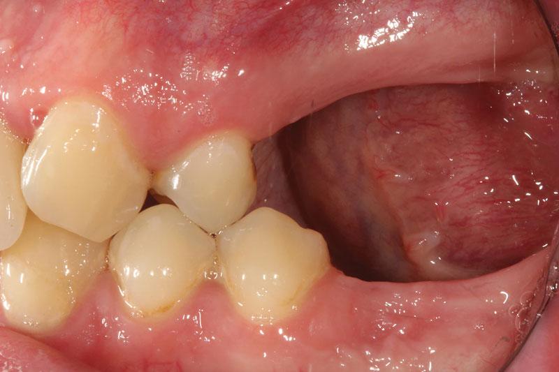 Mất răng lâu ngày sẽ dẫn đến tình trạng tiêu xương hàm