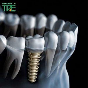 Trụ Implant Dentium Mỹ - Ưu điểm vượt trội và mức giá chi tiết