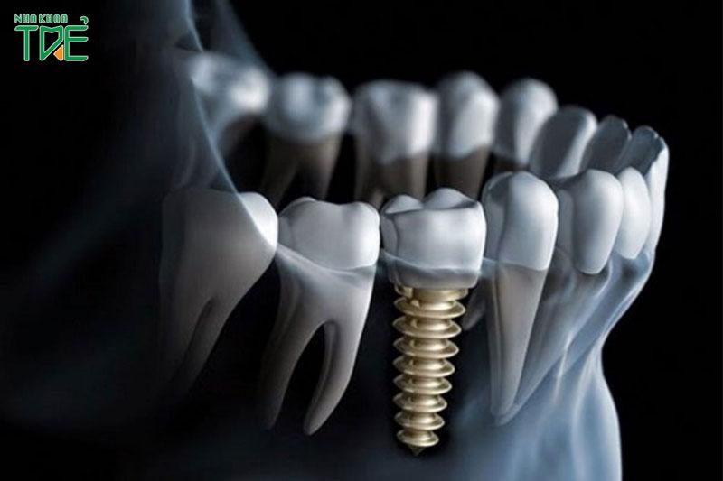 Trụ Implant Dentium có tốt không?