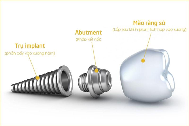 Trụ Implant ảnh hưởng rất lớn đến thời gian trồng răng Implant
