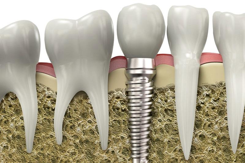 Trụ Implant Dentium Mỹ có khả năng tương thích cao với xương hàm