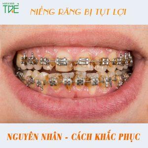 Nguyên nhân bị tụt lợi khi niềng răng và cách điều trị đứt điểm