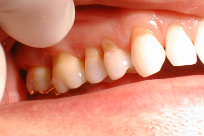 Tụt lợi khi niềng có nguy cơ làm mòn cổ chân răng