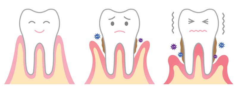 Răng bị tụt lợi có nguy cơ bị gãy rụng