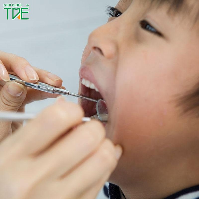 Bé 5 tuổi có nhổ răng được không khi răng đã bị sâu nặng
