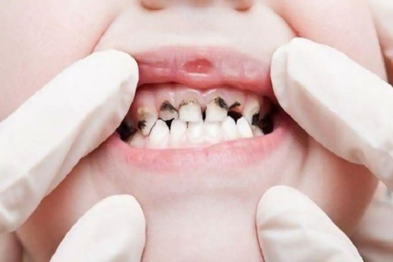 Sâu răng sẽ ăn mòn dần men răng bé