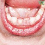 Bé 6 tuổi mọc răng lệch phải làm sao để khắc phục?