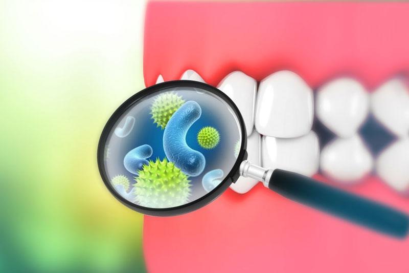 Răng lệch lạc tăng nguy cơ mắc bệnh lý răng miệng ở trẻ