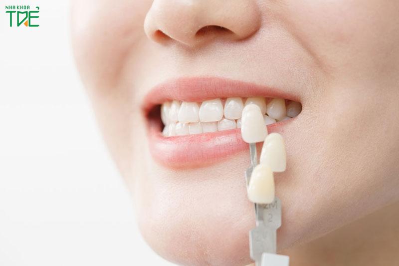 Bọc răng sứ 1 hàm giá bao nhiêu tiền?