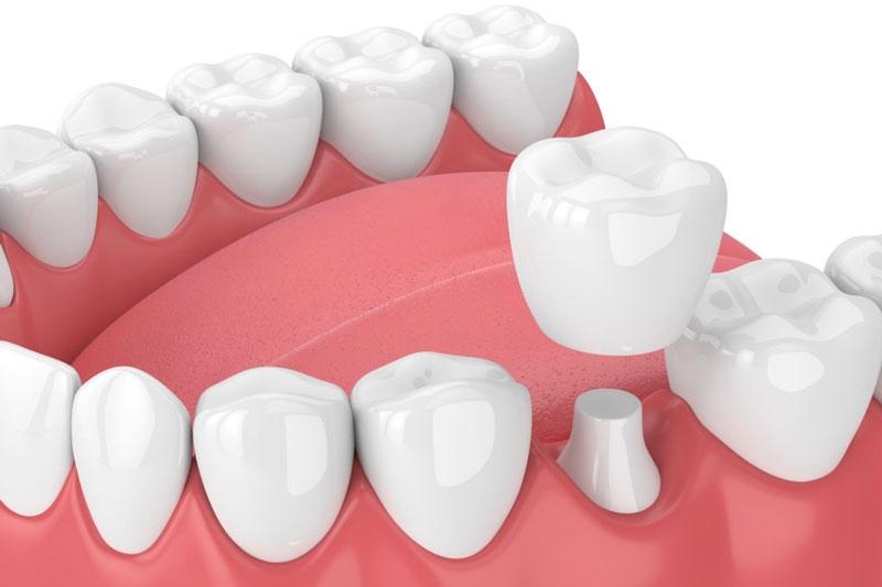 Bọc răng sứ phải mài răng để thực hiện