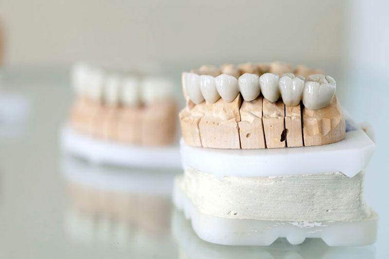 Lựa chọn loại răng sứ phù hợp