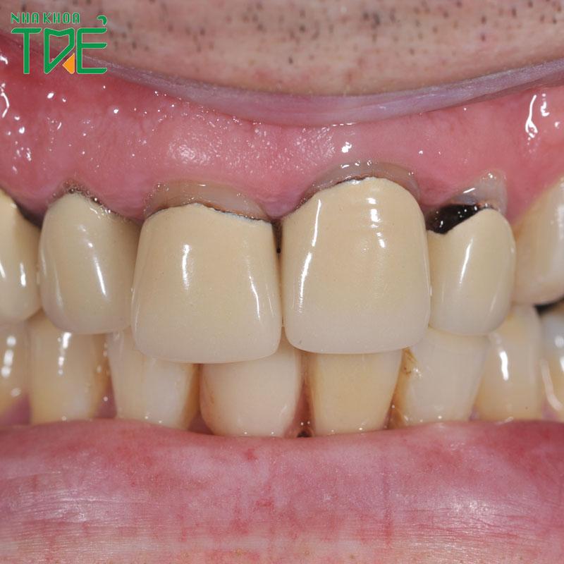 Các vấn đề nguy hại đến sức khỏe do bọc răng sứ bị hở chân răng