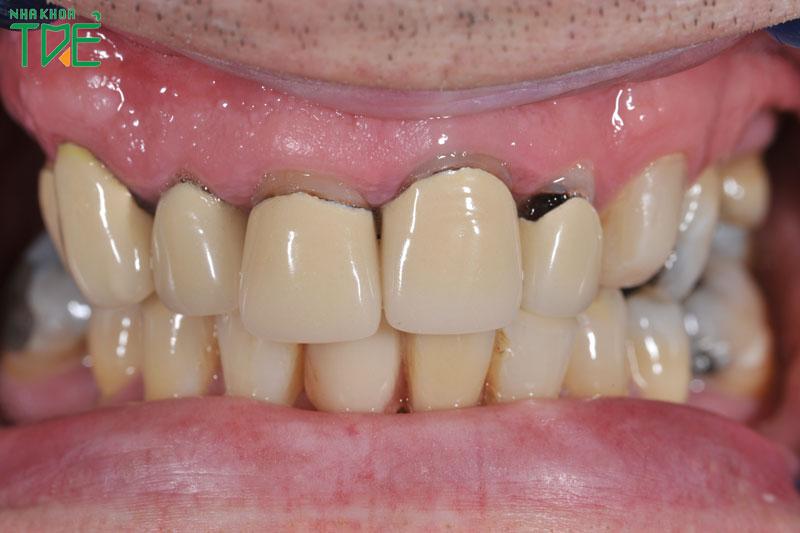 Bọc răng sứ bị hở chân răng làm mất thẩm mỹ