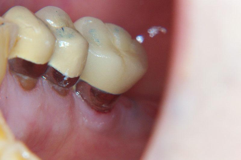 Bọc răng sứ bị hở chân răng