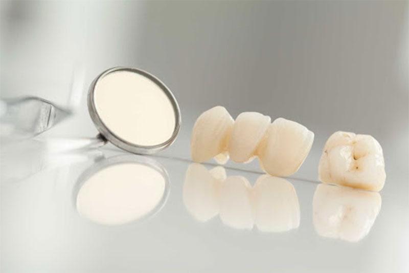 Răng sứ kim loại dễ làm lộ viền nướu