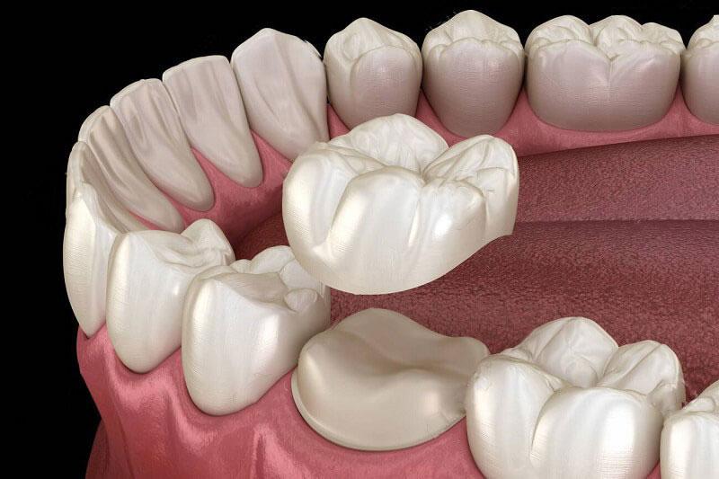 Bọc răng sứ cần phải mài răng để làm trụ răng