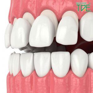 Bọc răng sứ không mài giá bao nhiêu tiền?
