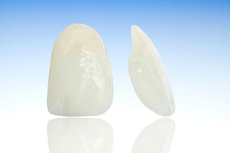 Mặt dán sứ mỏng nhưng vẫn đảm bảo tính thẩm mỹ trên răng